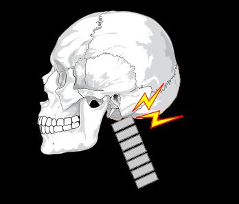 顎があがり後頭部と首の付け根が緊張して神経を圧迫