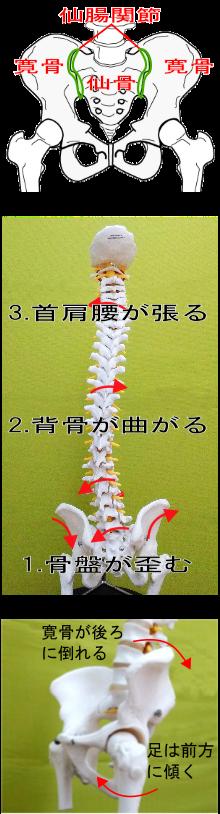 根本原因により寛骨が後ろに倒れると足を組みたくなる