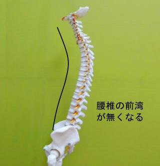 腰を後ろに下げて腰椎の前方への湾曲が無くなる