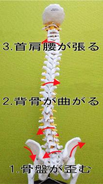 背骨のS字の歪み