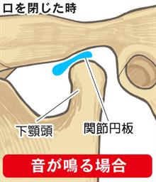 音が鳴る:口を閉じた時の関節円盤