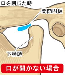 口が開かない:口を閉じた時の関節円盤